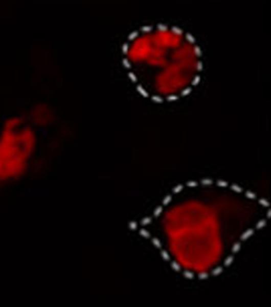 Sclerosi laterale amiotrofica: scoperto un legame tra il sistema immunitario e la morte dei motoneuroni