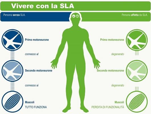 Settembre 2019: il punto sulla ricerca scientifica sulla SLA